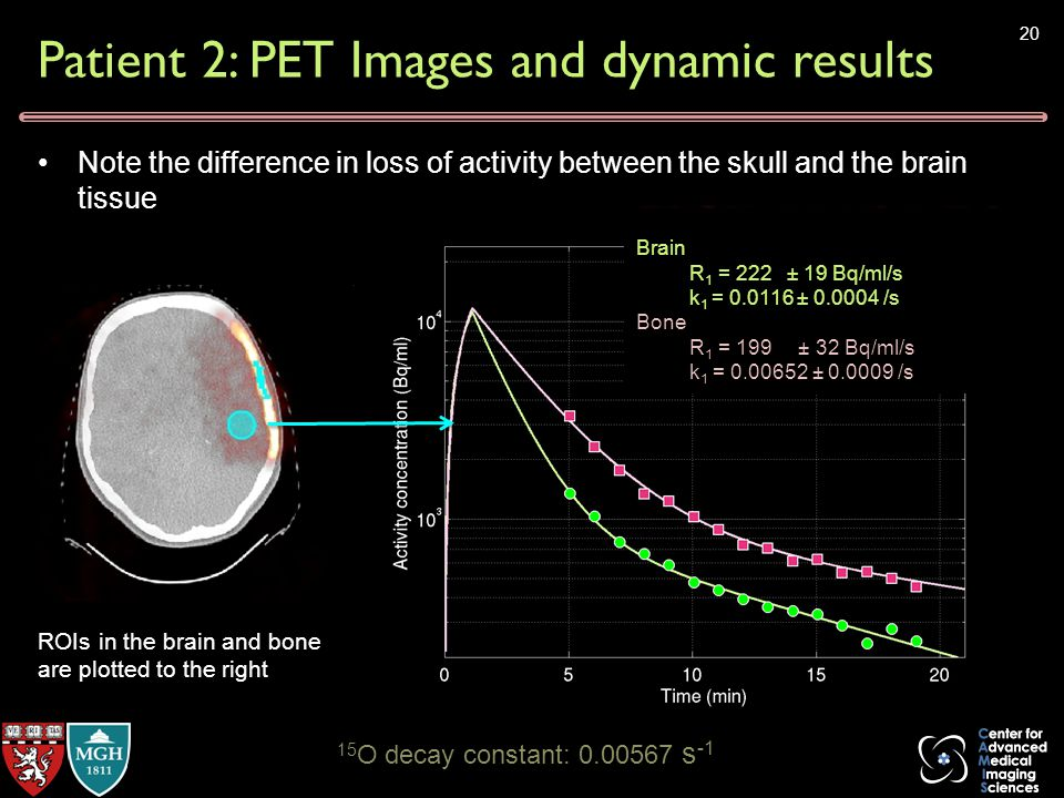 Note the difference in loss of activity between the skull and the brain tissue Patient 2: PET Images and dynamic results ROIs in the brain and bone are plotted to the right Brain R 1 = 222 ± 19 Bq/ml/s k 1 = 0.0116 ± 0.0004 /s Bone R 1 = 199 ± 32 Bq/ml/s k 1 = 0.00652 ± 0.0009 /s 20 15 O decay constant: 0.00567 s -1
