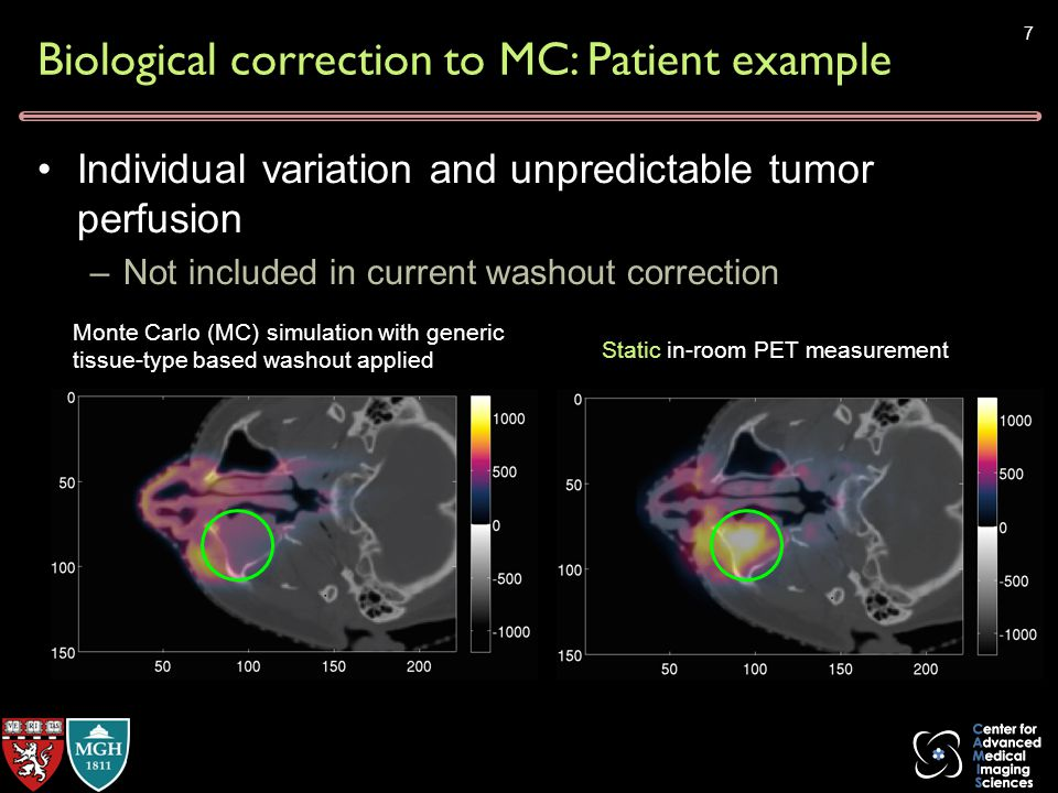 Biological correction to MC: Patient example Individual variation and unpredictable tumor perfusion –Not included in current washout correction Monte Carlo (MC) simulation with generic tissue-type based washout applied Static in-room PET measurement 7