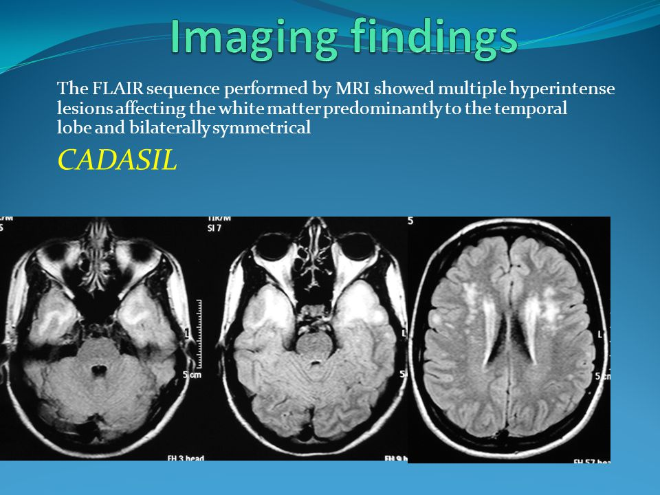 The FLAIR sequence performed by MRI showed multiple hyperintense lesions affecting the white matter predominantly to the temporal lobe and bilaterally