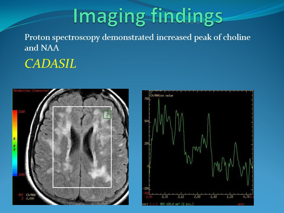 Proton spectroscopy demonstrated increased peak of choline and NAA CADASIL