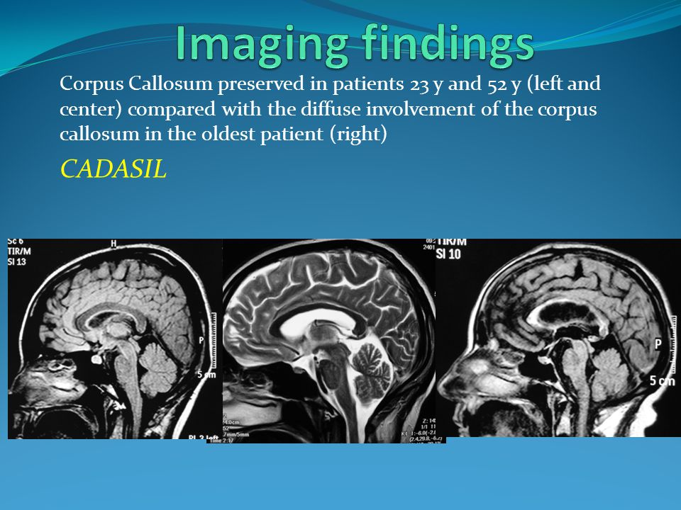 Corpus Callosum preserved in patients 23 y and 52 y (left and center) compared with the diffuse involvement of the corpus callosum in the oldest patie