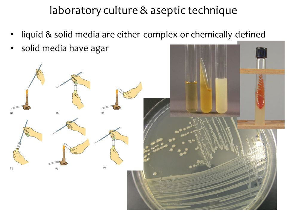 laboratory culture & aseptic technique liquid & solid media are either complex or chemically defined solid media have agar