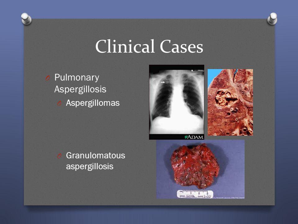 Clinical Cases O Pulmonary Aspergillosis O Aspergillomas O Granulomatous aspergillosis