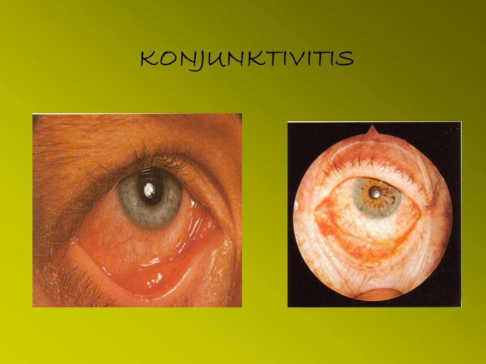 KONJUKTIVITIS DEFINISI : Inflamasi pd selaput konjunktiva.