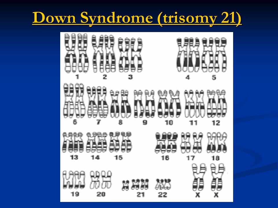 Edward Syndrome (trisomy 18) Edward Syndrome (trisomy 18) Gender – Female (XX)