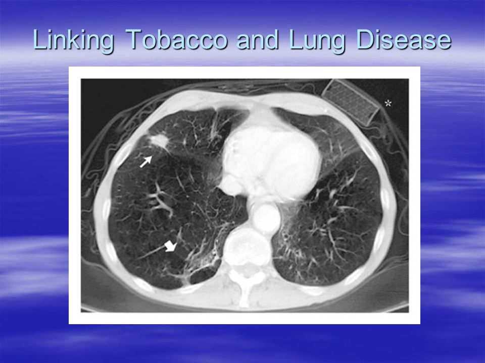 Linking Tobacco and Lung Disease