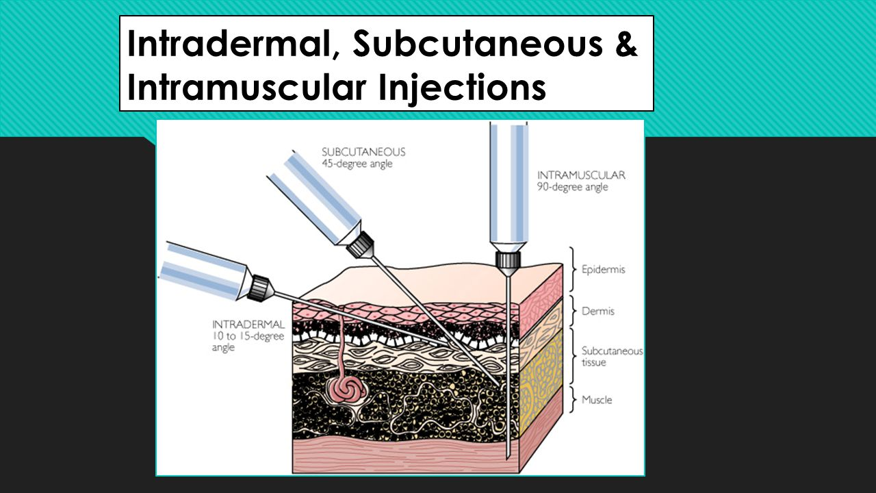 Intradermal, Subcutaneous & Intramuscular Injections