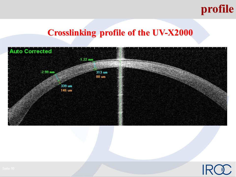 Seite 10profile Crosslinking profile of the UV-X2000