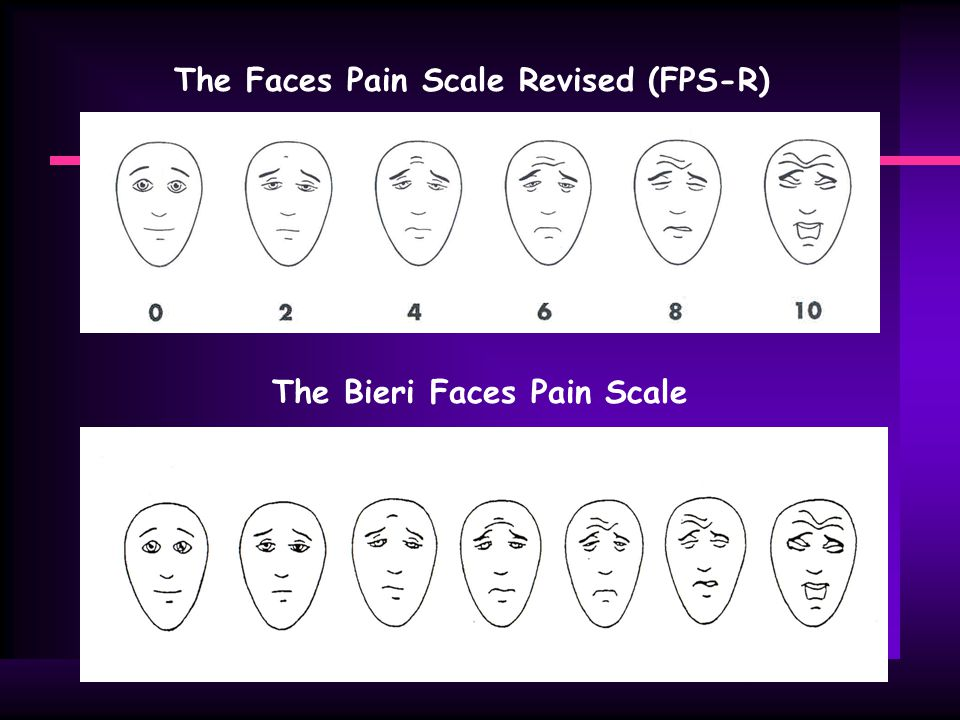 The Faces Pain Scale Revised (FPS-R) The Bieri Faces Pain Scale