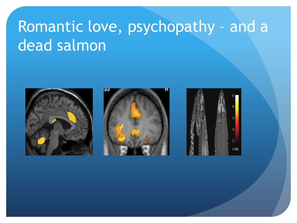 Romantic love, psychopathy – and a dead salmon