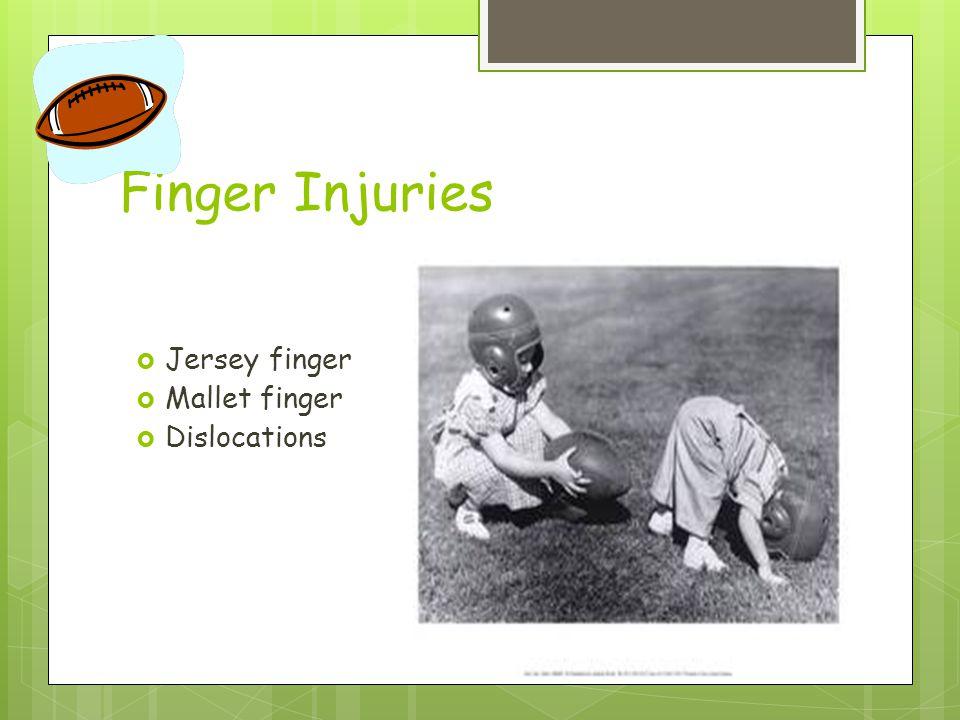 Finger Injuries  Jersey finger  Mallet finger  Dislocations