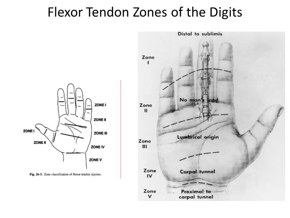 Flexor Tendon Zones of the Digits