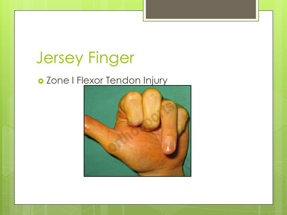 Jersey Finger  Zone I Flexor Tendon Injury