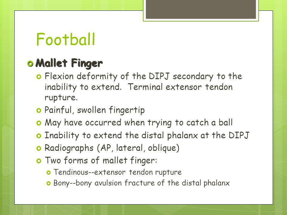 Football  Mallet Finger  Flexion deformity of the DIPJ secondary to the inability to extend. Terminal extensor tendon rupture.  Painful, swollen fi