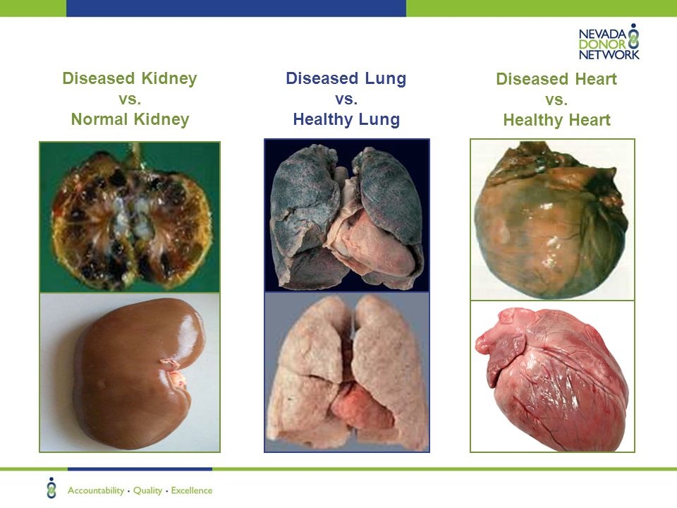 Diseased Kidney vs. Normal Kidney Diseased Lung vs. Healthy Lung Diseased Heart vs. Healthy Heart