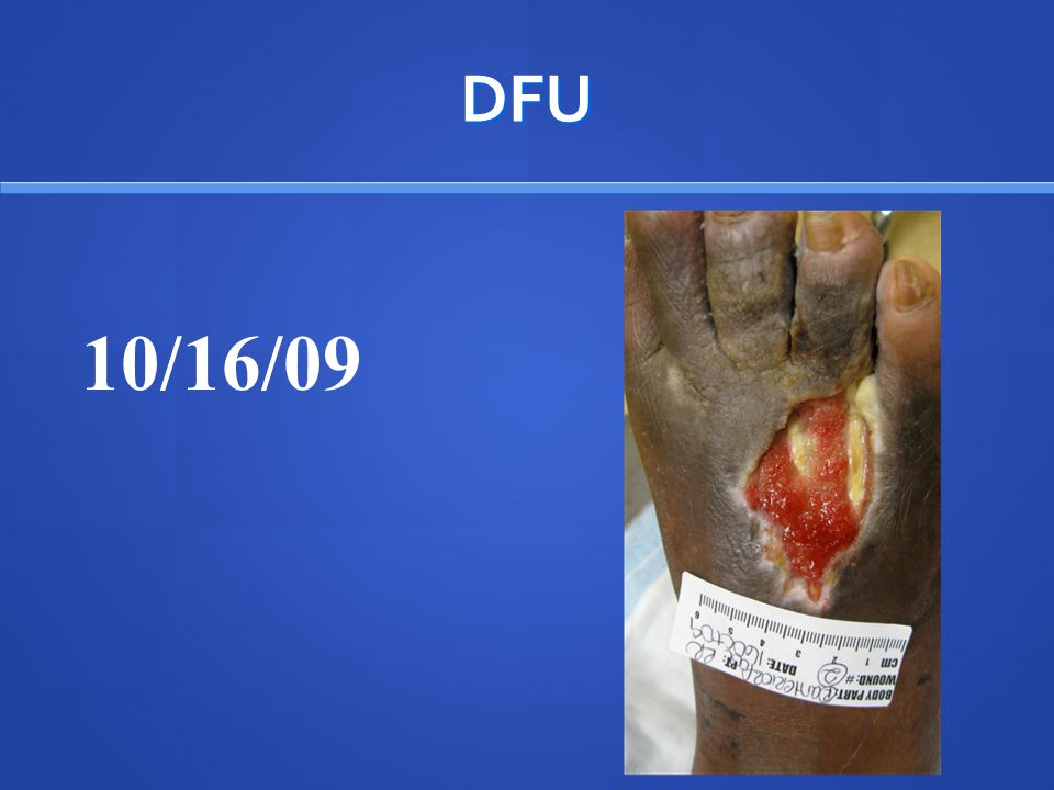 Wagner Classification Diabetic Foot Ulcers Grade 0:Intact skin Grade 0:Intact skin Grade I:Superficial without penetration deeper layers Grade I:Superficial without penetration deeper layers Grade II: Deeper reaching tendon, bone, or joint capsule Grade II: Deeper reaching tendon, bone, or joint capsule Grade III: Deeper with abscess, osteomyelitis, or tendonitis extending to those structures Grade III: Deeper with abscess, osteomyelitis, or tendonitis extending to those structures Grade IV: Gangrene of some portion of the toe, toes, and/or forefoot Grade IV: Gangrene of some portion of the toe, toes, and/or forefoot Grade V:Gangrene involving the whole foot or enough of the foot that no local procedures are possible Grade V:Gangrene involving the whole foot or enough of the foot that no local procedures are possible Wagner FW.