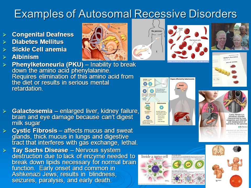 Examples of Autosomal Recessive Disorders  Congenital Deafness  Diabetes Mellitus  Sickle Cell anemia  Albinism  Phenylketoneuria (PKU) – Inabili