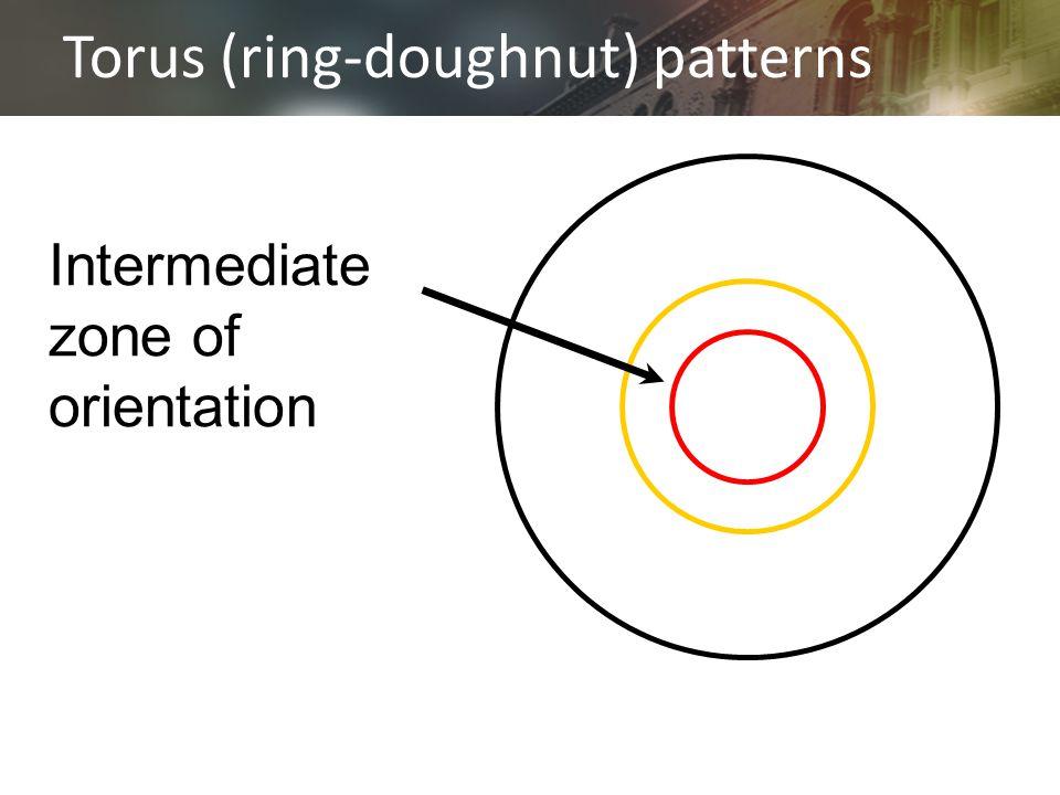 Torus (ring-doughnut) patterns Intermediate zone of orientation
