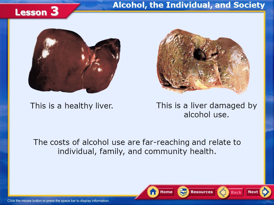 Lesson 3 Effects of Alcoholism Often, alcoholism has indirect, as well as direct, effects on people associated with alcoholics.