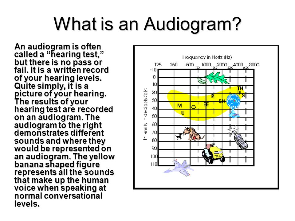 An audiogram is often called a hearing test, but there is no pass or fail.