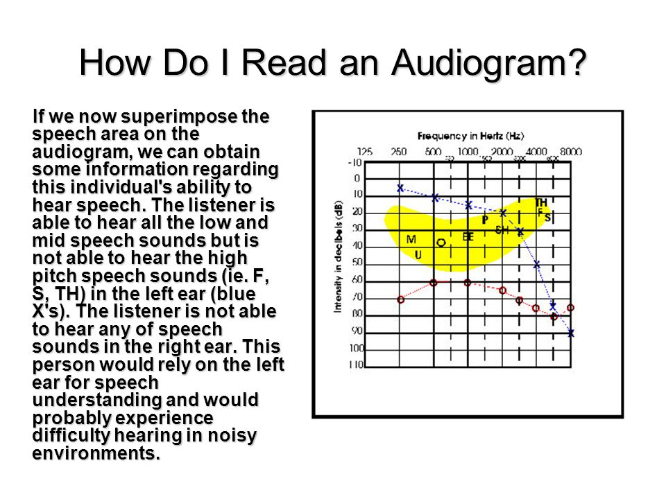 If we now superimpose the speech area on the audiogram, we can obtain some information regarding this individual s ability to hear speech.