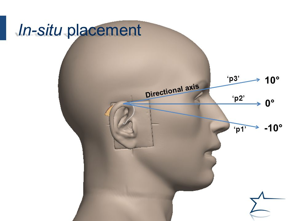 0° 10° -10° 'p3' 'p2' 'p1' Directional axis In-situ placement