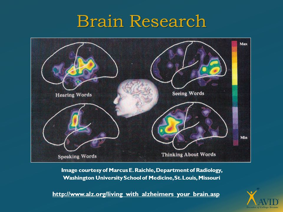 Brain Research Image courtesy of Marcus E.