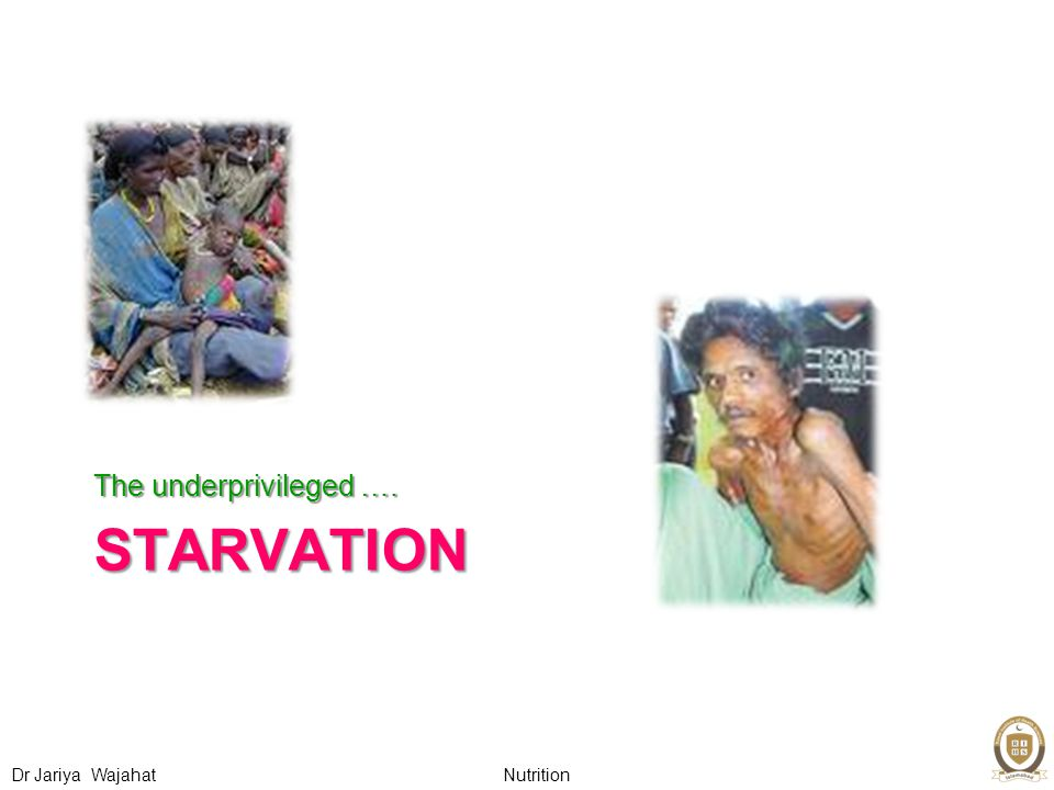 Nutrition Dr Jariya Wajahat STARVATION The underprivileged ….