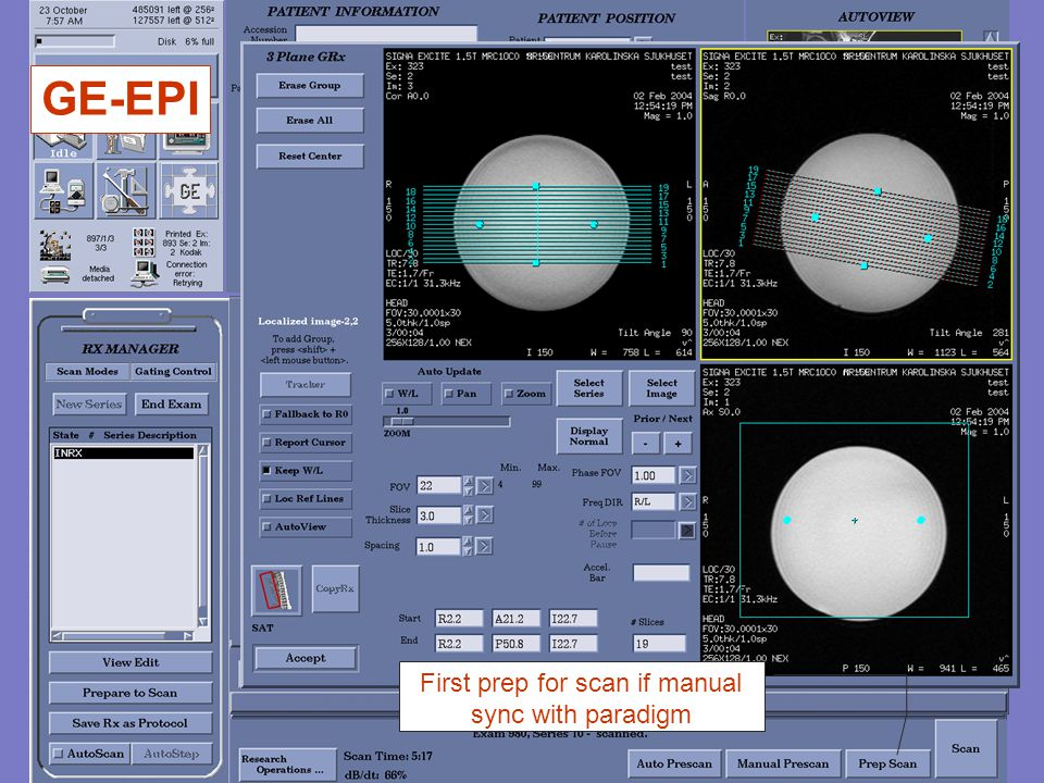 GE-EPI First prep for scan if manual sync with paradigm