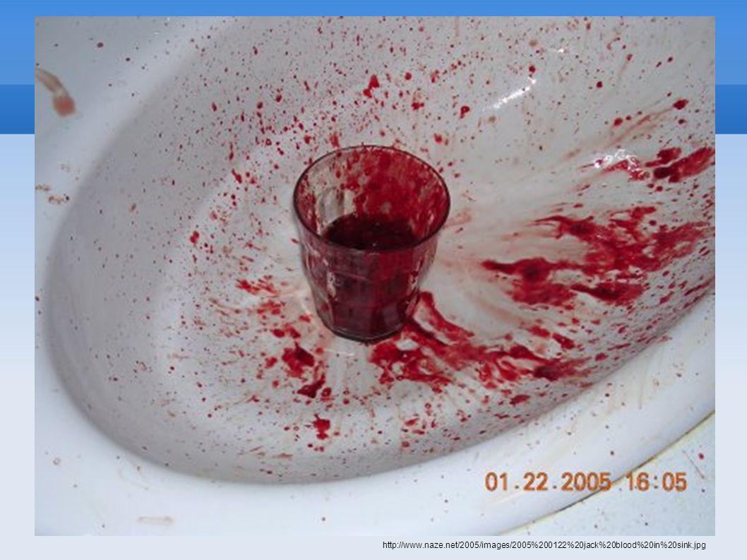 http://www.naze.net/2005/images/2005%200122%20jack%20blood%20in%20sink.jpg