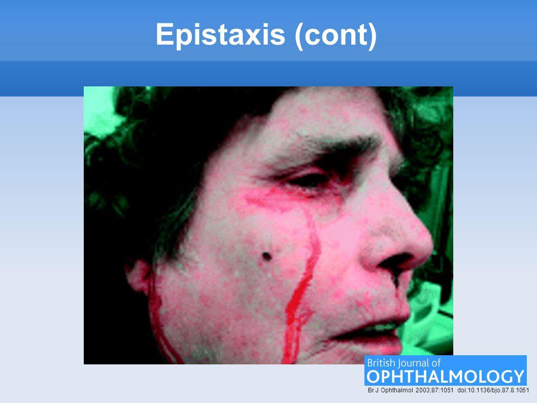Epistaxis (cont) Br J Ophthalmol 2003;87:1051 doi:10.1136/bjo.87.8.1051