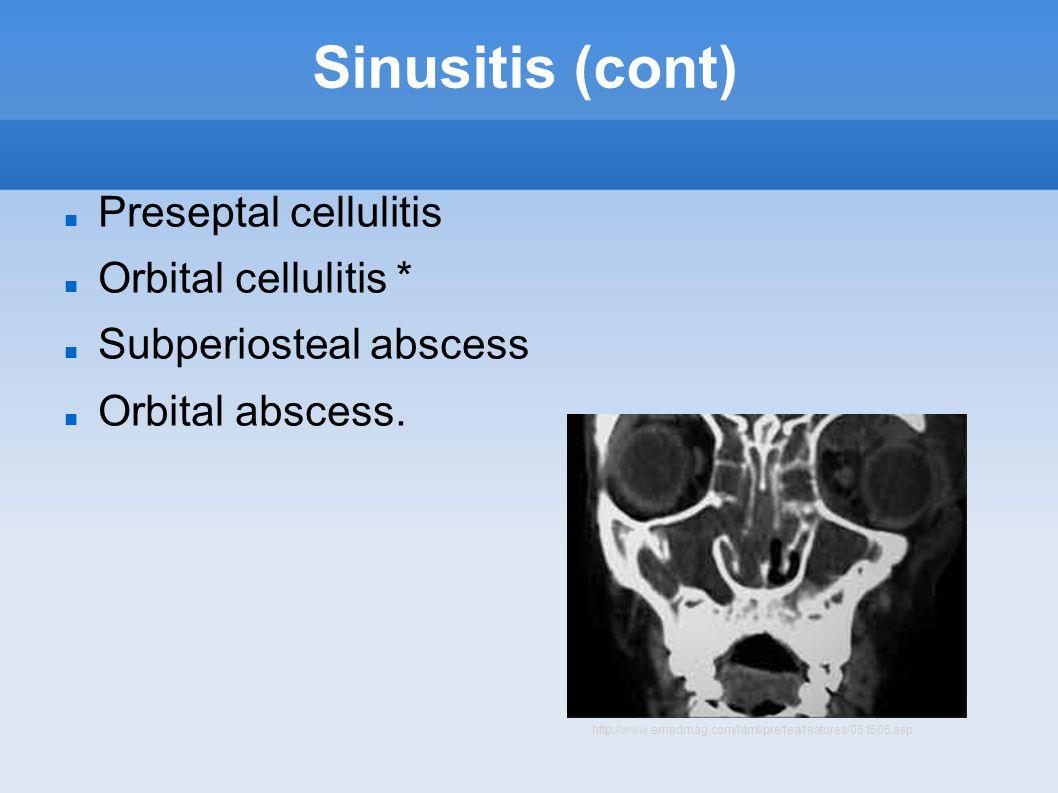 Sinusitis (cont) Preseptal cellulitis Orbital cellulitis * Subperiosteal abscess Orbital abscess.