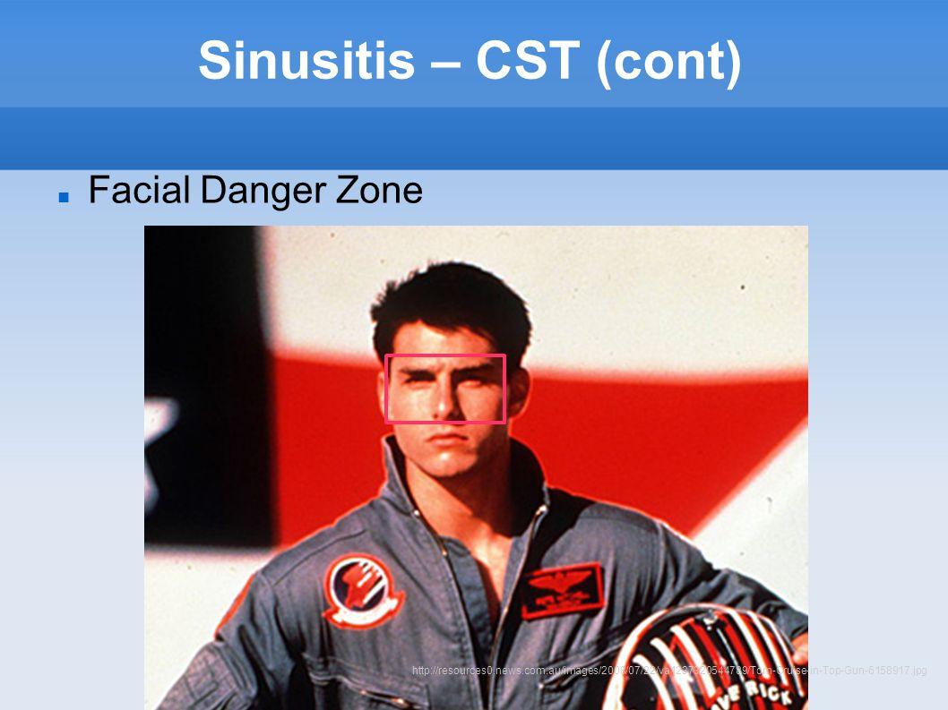 Sinusitis – CST (cont) Facial Danger Zone http://resources0.news.com.au/images/2008/07/22/va1237320544789/Tom-Cruise-in-Top-Gun-6158917.jpg
