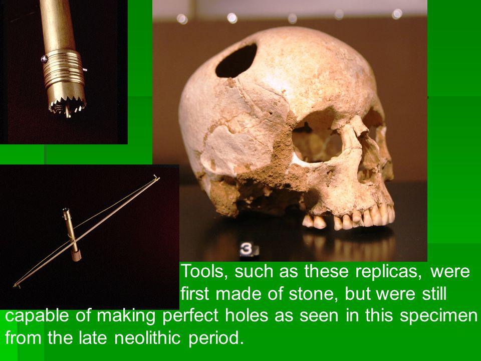 Trephinations were mainly used to relieve pressure on the skull, caused by swelling of the brain, much the same way a person relieves the pressure of a subungal hematoma.