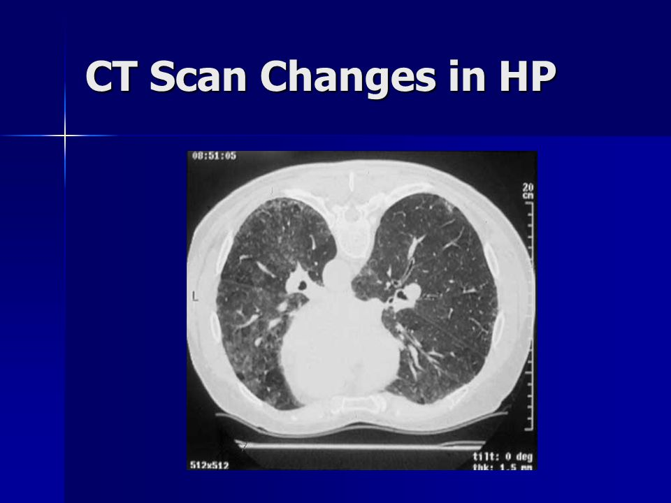 CT Scan Changes in HP
