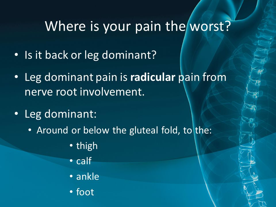 Where is your pain the worst? Is it back or leg dominant? Leg dominant pain is radicular pain from nerve root involvement. Leg dominant: Around or bel