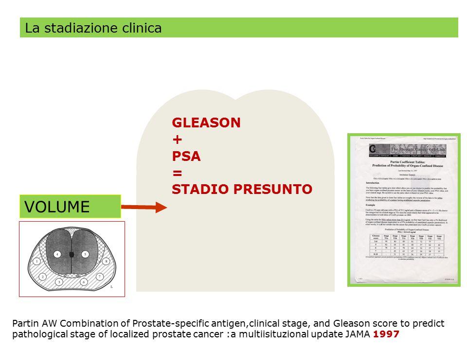 GLEASON + PSA = STADIO PRESUNTO VOLUME Partin AW Combination of Prostate-specific antigen,clinical stage, and Gleason score to predict pathological st