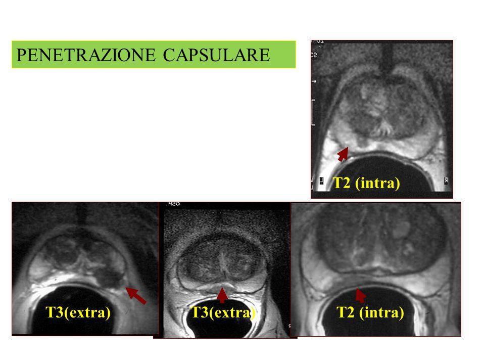 T2 (intra) T3(extra) PENETRAZIONE CAPSULARE