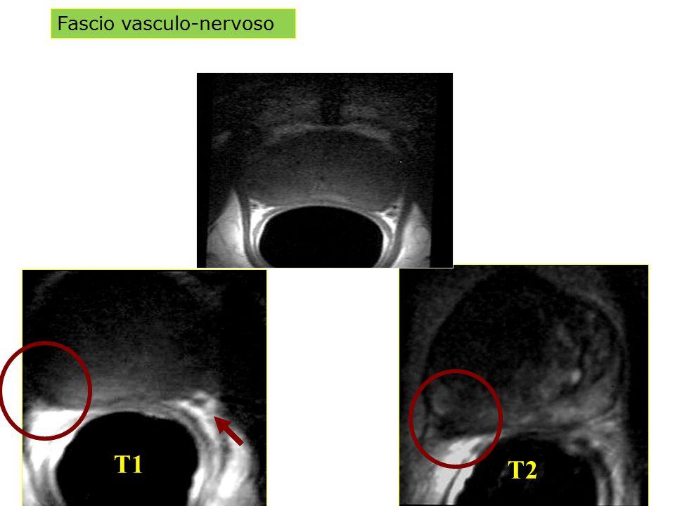 Fascio vasculo-nervoso T1 T2