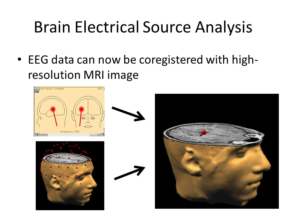 Brain Electrical Source Analysis EEG data can now be coregistered with high- resolution MRI image