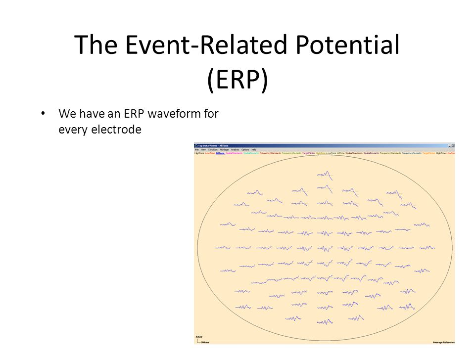 The Event-Related Potential (ERP) We have an ERP waveform for every electrode