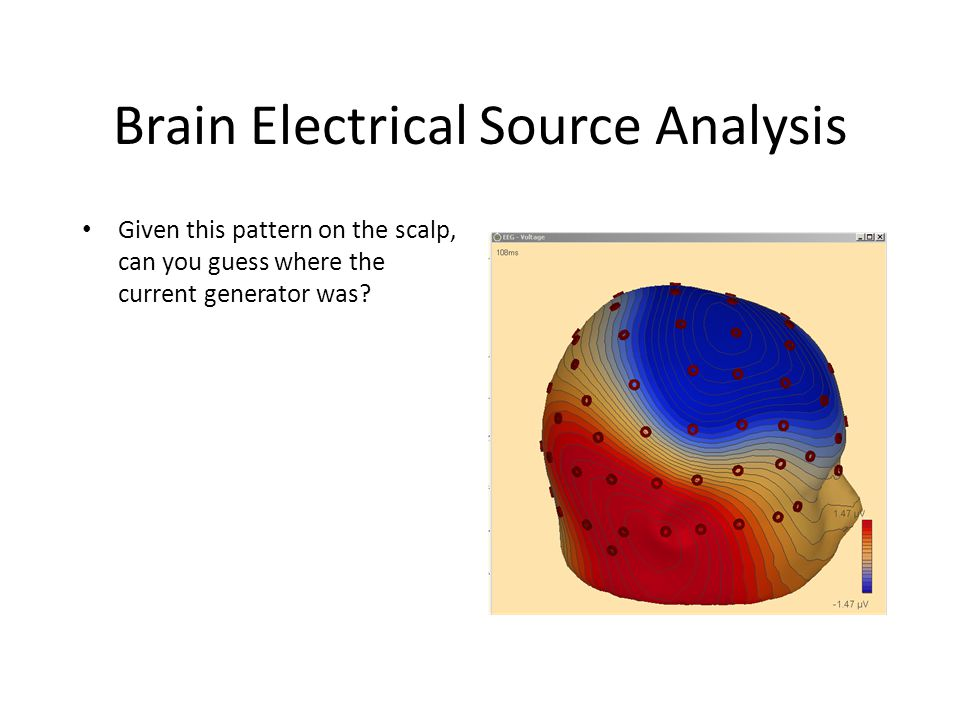 Brain Electrical Source Analysis Given this pattern on the scalp, can you guess where the current generator was