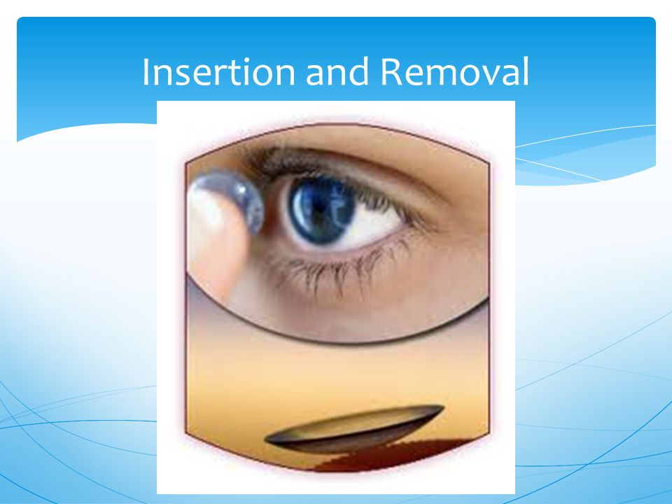 Insertion and Removal