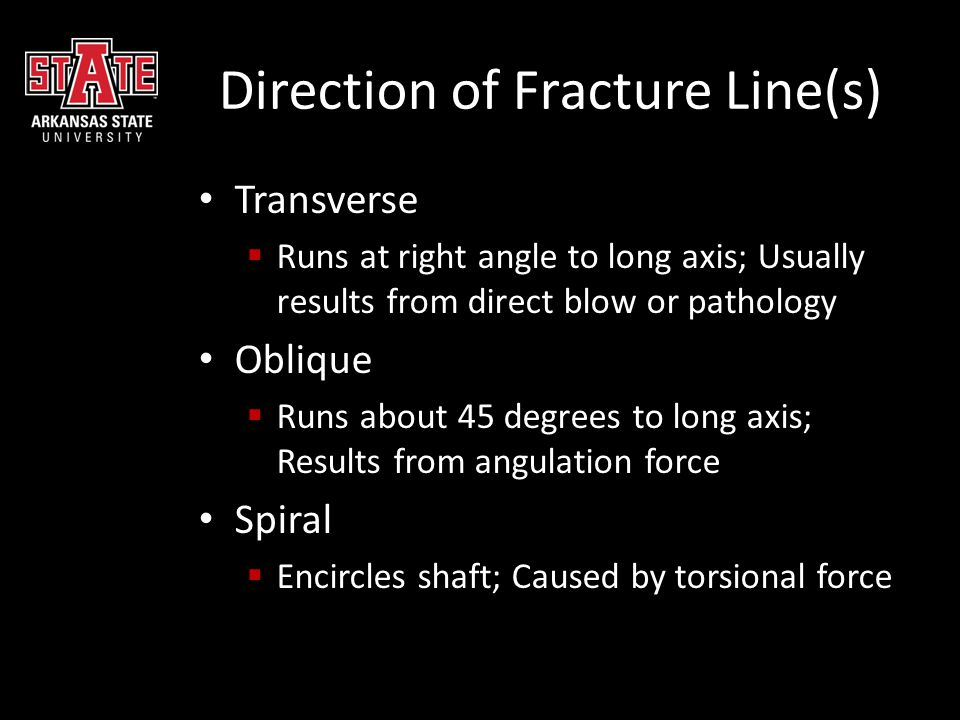 Direction of Fracture Line(s) Transverse  Runs at right angle to long axis; Usually results from direct blow or pathology Oblique  Runs about 45 deg