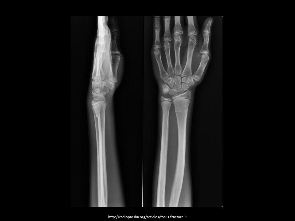 http://radiopaedia.org/articles/torus-fracture-1