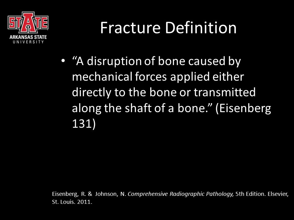 Radiographic Manifestations Radiolucent line crossing the bone & interrupting cortical margins Radiopaque line or area due to overlapping bone fragments