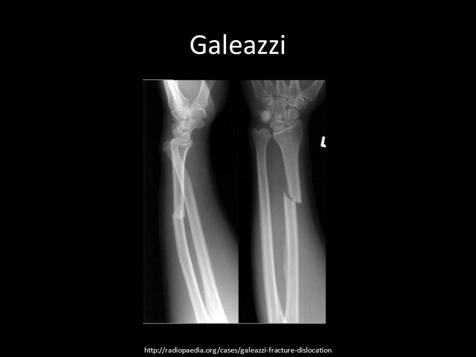 Galeazzi http://radiopaedia.org/cases/galeazzi-fracture-dislocation