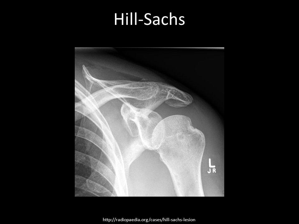 Hill-Sachs http://radiopaedia.org/cases/hill-sachs-lesion
