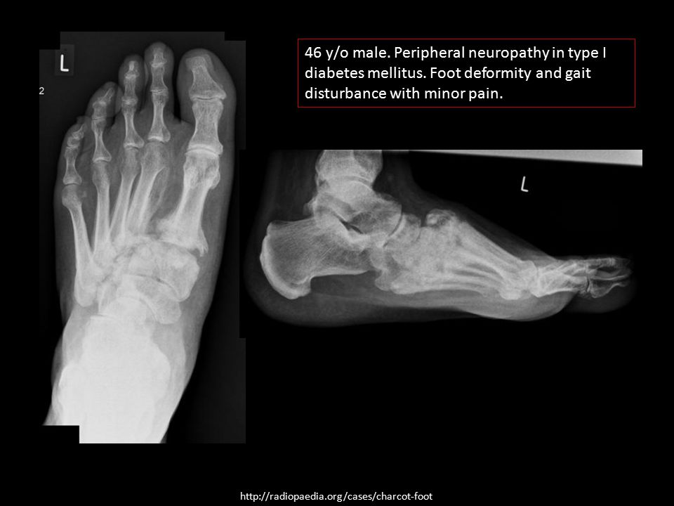 http://radiopaedia.org/cases/charcot-foot 46 y/o male. Peripheral neuropathy in type I diabetes mellitus. Foot deformity and gait disturbance with min
