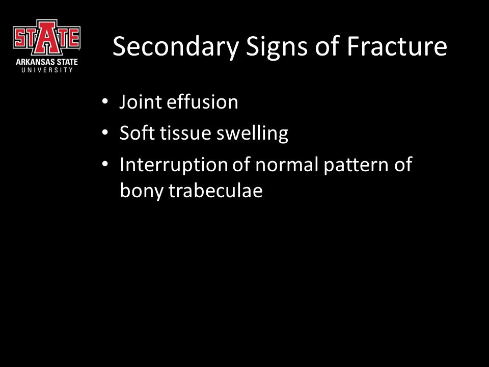 Charcot Joint Other causes: syphilis, steroid use, syringomyelia, spinal cord injury, spina bifida, scleroderma, leprosy Radiographic features = 6 D's  Dense bones (sclerosis)  Degeneration  Destruction (articular cartilage)  Deformity (@ metatarsal heads)  Debris (loose bodies)  Dislocation